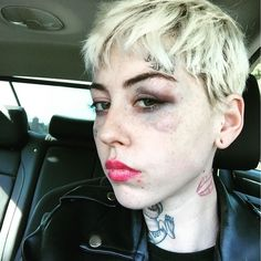 Artist Illma Gore after she was allegedly punched by a Donald Trump supporter (photo by @illmagore/Instagram)