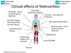 Children Obesity How toxic mold causes malnutrition and impairs growth in children Digestive Organs, Toxic Mold, Feeling Fatigued, Aging Parents, Cancer Sign, Cancer Treatment, Diet And Nutrition, Public Health, Health Problems