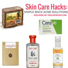 Skin Care Hacks: Simple Back Acne Solutions