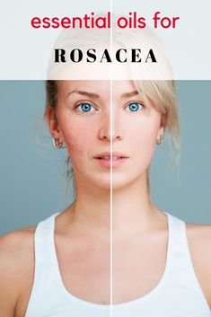 If you are looking for home remedies that will help to soothe your red skin, don't miss this recipe for Essential Oils for Rosacea. While there is no natural cure, essential oils may be helpful in returning your skin to balance. Essential Oils For Rosacea, Best Essential Oils, Young Living Oils, Young Living Essential Oils, Redness On Face, Natural Hair Mask, Natural Cures, Natural Remedies For Rosacea, Rosacea Remedies