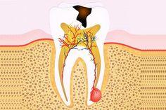The Ultimate Guide to Root Canal Treatment In Glen Waverley EK Dental Surgery Dentist Glen Waverley Tooth Extraction Aftercare, Tooth Extraction Healing, Dental Surgery, Dental Implants, Dental Hygienist, Impacted Wisdom Teeth, Teeth Whitening That Works, Teeth Pictures, Root Canal Treatment