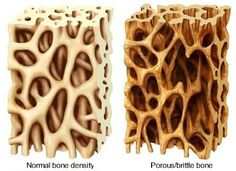 Osteoporosis — Juicing For Health. Juices high in alkaline, calcium, iron and vitamin D to promote bone health!
