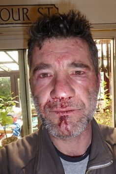 Man Gets Attacked By Animal Abusers For Telling Them Not To Hunt Animals In A Bristol Park! Demand Justice! | PetitionHub.org
