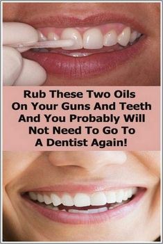 Rub these two oils on your gums and teeth and you probably will not need to go to a dentist again ! 10 bad oral habits you need to break now ! Restaurant Brochure, Digital Marketing Logo, Direct Marketing, Business Marketing, Online Marketing, Casio Vintage, Whatsapp Marketing, How To Have Style, Cesar Millan