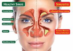 10 Natural And Herbal Remedies for Sinusitis! This is the time of the year for sinusitis that throbbing headache and all the other miserable symptoms that come with it . What is sinusitis, what causes it and some natural and herbal remedies that reall Home Remedies For Sinus, Natural Home Remedies, Herbal Remedies, Health Remedies, Sinus Infection Remedies, Nasal Congestion Remedies, Sinus Congestion Relief, Sinus Headache Relief, Health Care