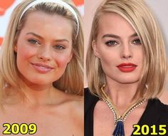 Margot Robbie before and after plastic surgery