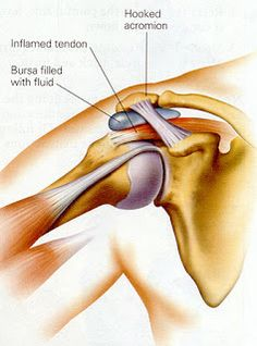 Physical Therapy DataBase: Shoulder Impingement