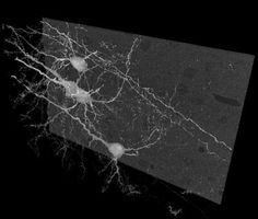 Maximum intensity projection of Golgi impregnated pyramidal neurons in the neocortex of an adult mouse, imaged via serial block-face scanning electron microscopy