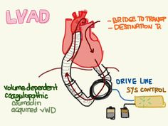 Lvad Tips Amp Resources Holster Shirts Student Centered Resources Tips And Shirts