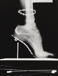 Radiography--An Art & a Science