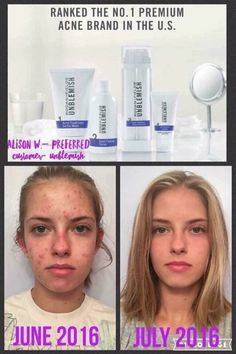 ONE MONTH.... Don't you just know her confidence has improved?! And THIS is why R+F Unblemish regimen is the #1 Premium Acne Brand in the U.S. You simply don't get that ranking unless you have the proven results (& HAPPY CUSTOMERS) to earn it. TAKING ORDERS NOW