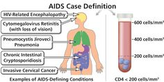 AIDS Case Definition | AIDSinfo AIDS Case Definition: Diagnostic criteria for AIDS established by the Centers for Disease Control and Prevention (CDC). To be diagnosed with AIDS, a person with HIV must have an AIDS-defining condition or have a CD4 count less than 200 cells/mm³ (regardless of whether the person has an AIDS-defining condition). 10/8/2015