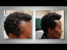 ~ Traitement naturelle de chutes des Cheveux ll jusnovit - YouTube
