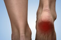 Learn how Lakeland pain management doctors manage heel spur pain, a common source of foot pain. Ankle Pain, Heel Pain, Foot Pain, Reactive Arthritis, Spine Pain, Back Pain, Plantar Fasciitis Treatment, Diy Pedicure, Health Tips