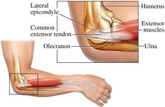 Tendonitis is painful and quite difficult to clear. When you have inner elbow pain, it is good to have steps that will help you get relief handy to prevent the pain from lasting weeks. Since the golfer elbow is a medical condition, it is good to look into medical advice. Chiropractors and acupuncturists have had good alternatives in taking care of the condition.