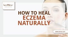 Find out how to manage eczema, without having to turn to strong medication, in 5 simple steps!