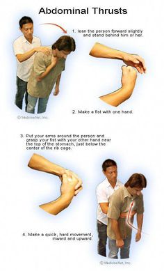 This is a first aid procedure used to treat choking caused by… Abdominal Thrusts. This is a first aid procedure used to treat choking caused by foreign objects, and this picture shows you how to perform it. Survival Tips, Survival Skills, Outdoor Survival, Emr Training, First Aid Procedures, Heimlich Maneuver, Emergency First Aid, Family Emergency, Emergency Care