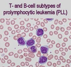T- and B-cell subtypes of prolymphocytic leukemia (PLL) are rare, aggressive lymphoid malignancies with characteristic morphologic, immunoph...