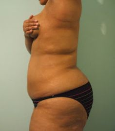 Matango girl pussy nude tits