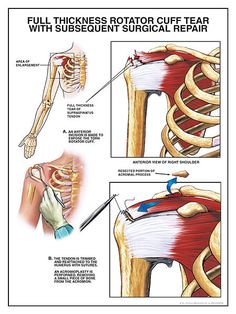 Rotator Cuff Physical Therapy protocol has been developed for the patient following a rotator cuff surgical procedure. This protocol will vary in length and aggressiveness depending on factors such as:    Size and location of tear  Degree of shoulder instability/laxity prior to surgery  Acute versus chronic condition  Length of time immobilized  Strength/pain/swelling/range of motion status  Rehabilitation goals and expectations