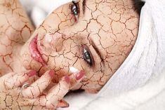Are you going for Laser Treatment or Chemical Peels for pigmentation prone skin? Here you know the risks & benefits associated with it. Facial For Dry Skin, Le Psoriasis, Dry Face, Eye Wrinkle, Chemical Peel, Skin Treatments, Good Skin, Natural Treatments, Natural Remedies