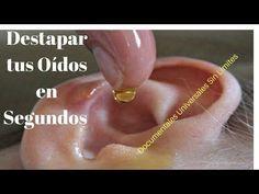 Increíble!!! Mira Como se Destapan tus Oídos en Segundos Con Este Remedio Casero - YouTube