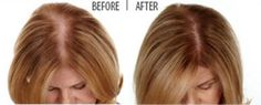 How does Laser Hair Re-Growth work? Find out how these painless treatments can help you: http://www.skintellectlaser.com/faq.html