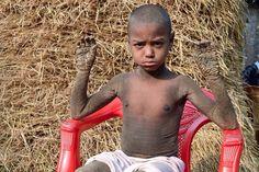 Μπαγκλαντές: Αυτό το αγόρι μετατρέπεται σε πέτρα λόγω σπάνιας ασθένειας