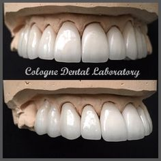 Emax Crowns by cologne.dental.lab Our Dental Veneers Page: http://www.myimagedental.com/services/cosmetic-dentistry/veneers/ Other Cosmetic Dentistry services we offer: http://www.myimagedental.com/services/cosmetic-dentistry Google My Business: https://plus.google.com/ImageDentalStockton/about Our Yelp Page: http://www.yelp.com/biz/image-dental-stockton-3 Our Facebook Page: https://www.facebook.com/MyImageDental Image Dental 3453 Brookside Road Suite A Stockton CA 95219 (209) 955-1500 Mon…