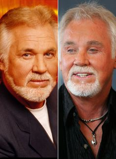 Poor Kenny Rogers before and after plastic surgery