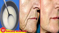 Most of us believe that to Remove Deep Wrinkles On The Face natural methods are not effective like the aesthetic methods. But the fact is that using the natu. Wrinkle Remedies, Neck Wrinkles, Anti Aging Facial, Face Skin Care, Wrinkle Remover, Skin Treatments, Beauty Skin, Easy Youtube, Extreme Hair