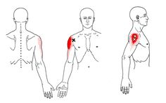 Deltoid | The Trigger Point & Referred Pain Guide