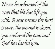 never be ashamed of scars life quote. Scars are memories we hurt because we are human and it happens