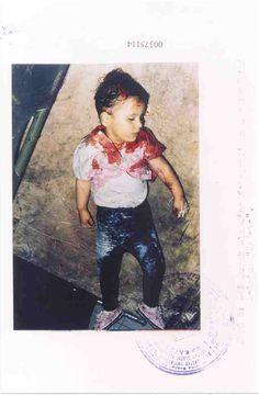 Elmedina Burek, child victim killed by Modified Air Bomb during Serbian Bombardment of Sarajevo