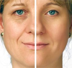 Here's a do-it-yourself face-lift option that's far less invasive and far less expensive...