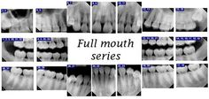 Full Mouth Dental X-rays | full mouth series it consists of 18 intraoral x rays