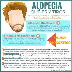 La Caída del cabello…Todo lo que debes saber sobre los tipos de alopecia y su Pronóstico