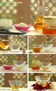 acne treatment Acne Treatment apple cider vinegar Acne Treatment diy Acne Treatment how to get rid Acne Treatment overnight Acne Treatment products Back Acne Treatment Simple Skin Care Tips And Advice For You Skin Care Remedies, Acne Remedies, Vinegar For Acne, Apple Cider Vinegar Bath, Acne Face Mask, Face Masks, Face Face, Back Acne Treatment, Acne Scars