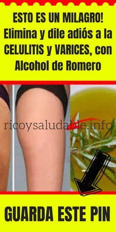 Home Remedies Natural Health Tips Natural Cures Milagro Varicose Vein Remedy Dolores Body Care Body Motivation Loose Weight Varicose Vein Remedy, Varicose Veins, Natural Health Tips, Natural Cures, Heart Circulation, Fitness Diet, Health Fitness, Best Workout Routine, Body Motivation