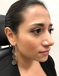 Before photo of female treated with Restylane Lyft for Cheek Contouring Cheek Contouring, Cosmetics, Face, Earrings, Ear Rings, Stud Earrings, Ear Piercings, The Face, Ear Jewelry
