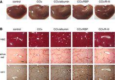 Fusion protein of retinol‐binding protein and albumin domain III ...