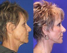 Ginger, 65 – Youthful Reflections Facelift / Reflection Lift Fractional Co2 Laser Skin Resurfacing