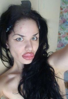 How To Have Big Puffy Lips like Angelina Jolie. Plastic Surgery Fail - Best Funny Pictures Walmart Humor Jokes