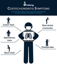 Costochondritis Symptoms