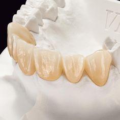 MDT Hans Jürgen Lange has tested the new, highly translucent zirconia blanks VITA YZ® ST and VITA YZ® XT. His central findings from… Dental Aesthetics, Dental Anatomy, Dental Technician, Dental Veneers, Smile Dental, Dental Art, Teeth, Ceramics, Art Art