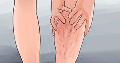 Les varices sont la conséquence d'une mauvaise circulation du sang, voici comment les prévenir et les traiter naturellement.