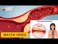 😍 Know 11 Surprising Ways To Lower Your Cholesterol !!! 👌 Daily H...