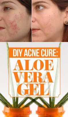 How to use Aloe Vera to Cure Acne
