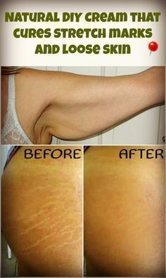 Natural DIY Cream that cures stretch marks and loose skin. Ingredients: ½ cup coconut butter ½ cup coconut oil ¼ cup olive oil ½ cup cocoa butter 2 tablespoons food starch 1 teaspoon of oil with vitamin E capsules 1 tablespoon of lavender essential oil ½ frankincense essential oil 2 tablespoons cocoa powder