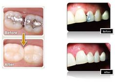 Replace your missing or damaged teeth with Dental Implants Treatment at Novadent.
